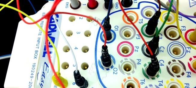 wires_Sleep_study